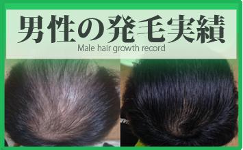 熊本スーパースカルプ男性の薄毛治療・発毛実績