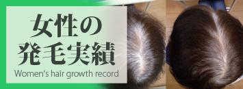 熊本スーパースカルプ女性の薄毛治療・発毛実績