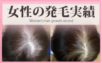 女性の薄毛治療・発毛実績