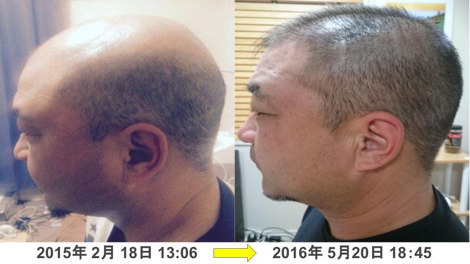 男性の薄毛治療実績
