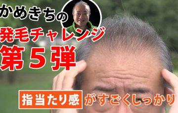 かめきちさんの発毛チャレンジ
