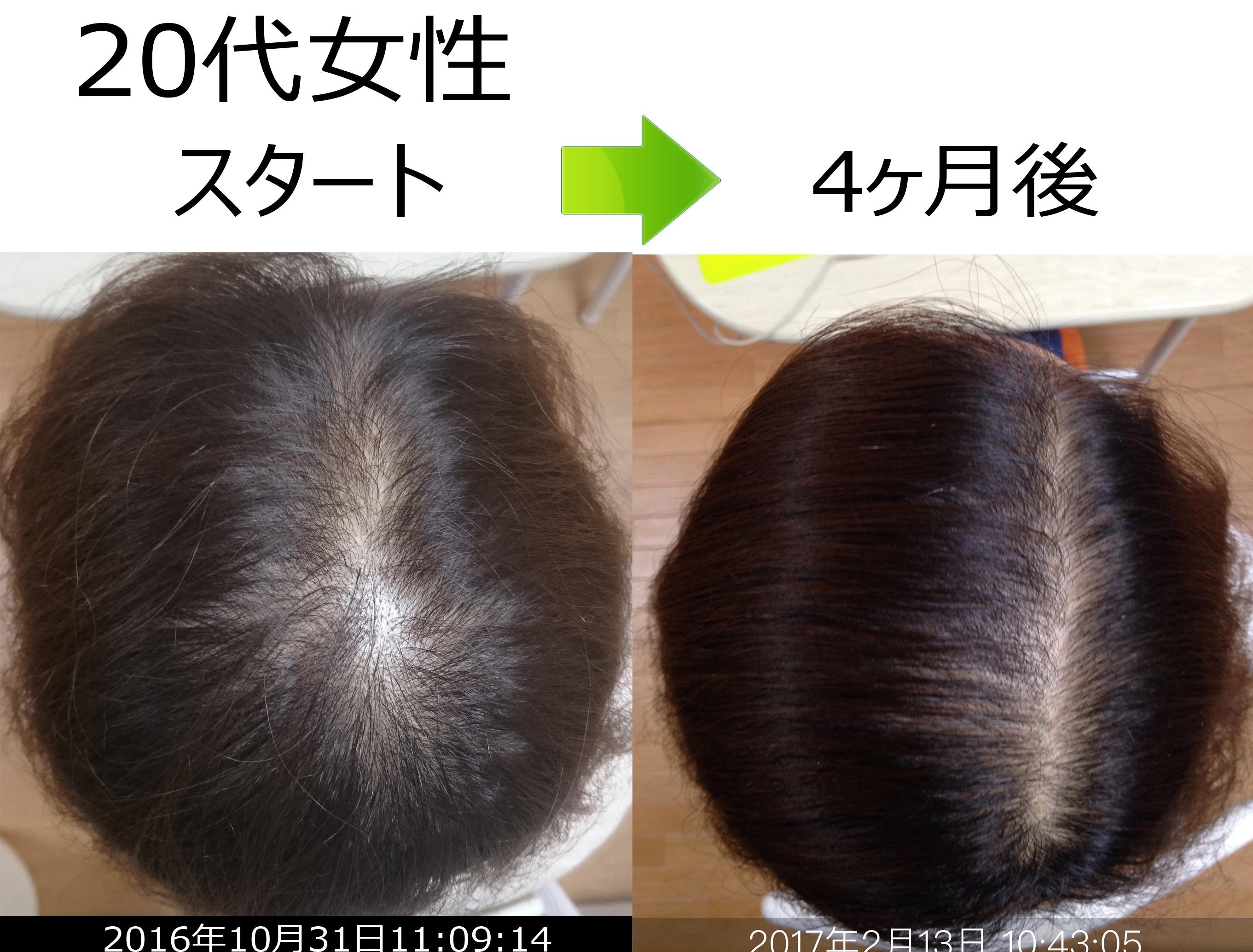 女性の薄毛治療実績