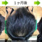 熊本スピード発毛