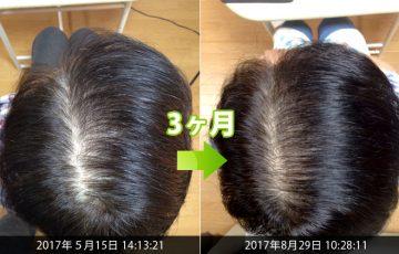 50代女性びまん性脱毛症