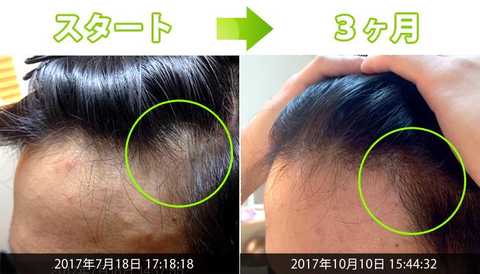 生え際の薄毛治療もバッチリ!30代男性AGA改善例│熊本スーパー ...