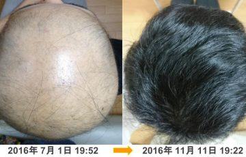 円形脱毛症(全頭型)改善例