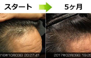 40代男性_薄毛改善
